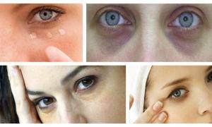 Плач и опухшие глаза после слёз - что делать? Рецепты