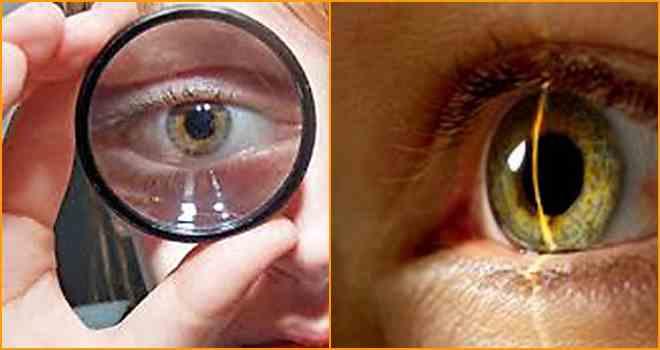 Близорукость можно ли носить очки ребенку