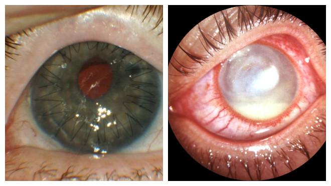 Симптомы и лечение кератита глаза важные моменты