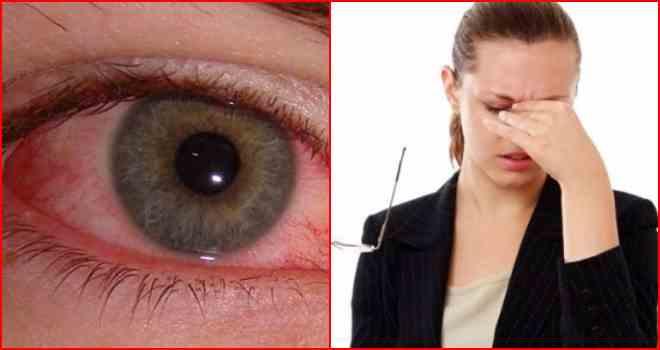Что помогает от боли в глазах в домашних условиях 998
