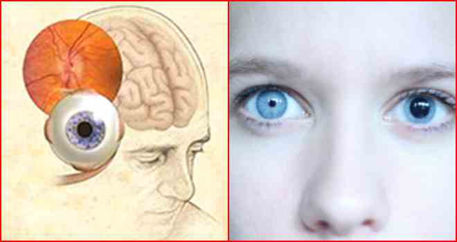 синдром эйди-холмса