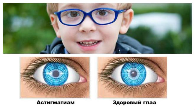 Виды астигматизма у детей какие симптомы и что делать
