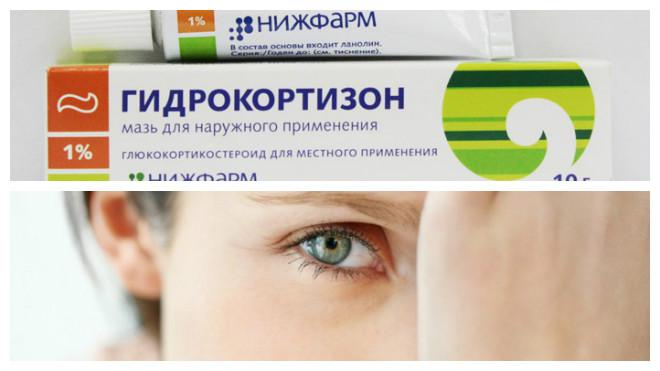 гидрокартизованная мазь при ячмене на глазу