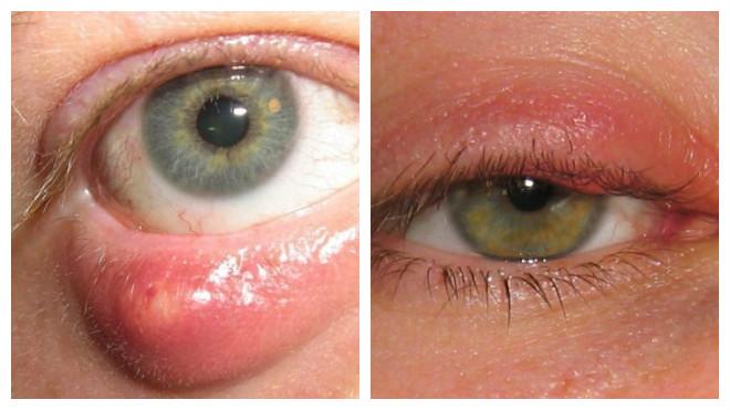 Современная мазь от ячменя на глазу и появления первых симптомов