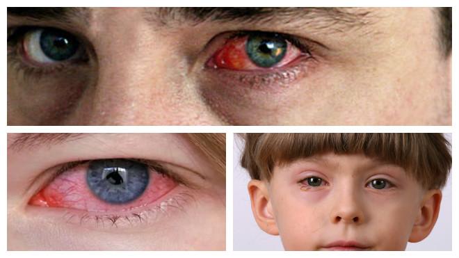 Почему возникает аллергический конъюнктивит и как протекает