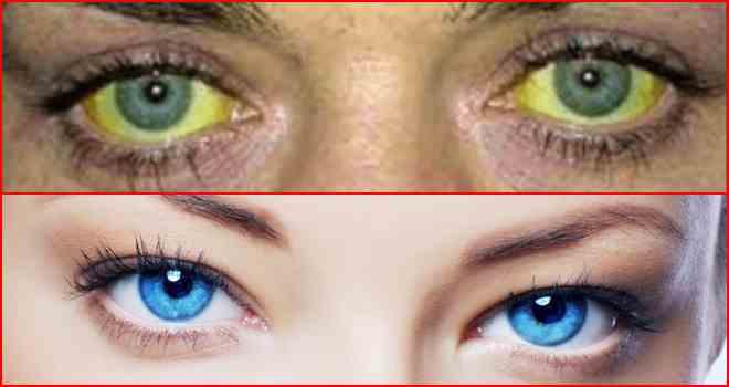 Диагноз желтые белки глаз --- причины изменения цвета