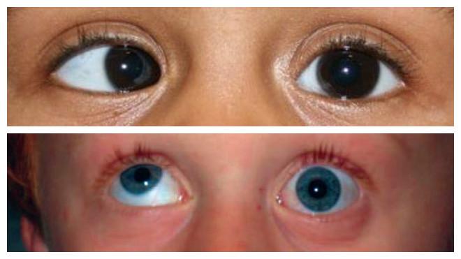 Причины временного, кратковременного и постоянного двоения в глазах по вертикали и горизонтали у детей и взрослых, как избавиться и что делать, лечение.