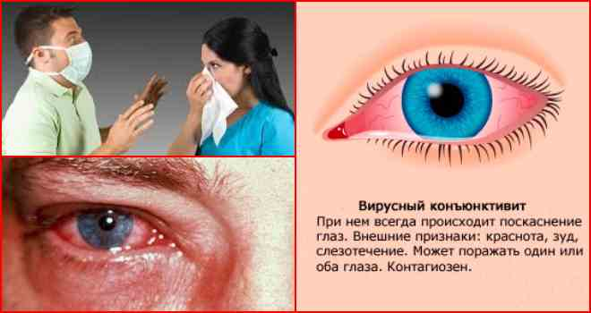 Вирусный конъюнктивит: профилактика и принципы лечения