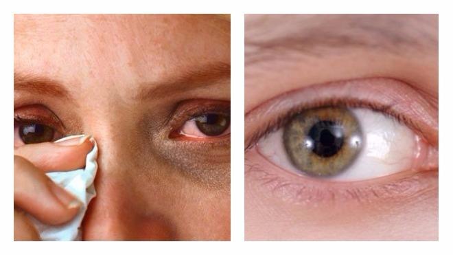 воспаление под глазом где мешочки фото