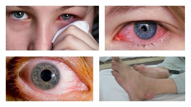 Неврит зрительного нерва: почему развивается и как протекает