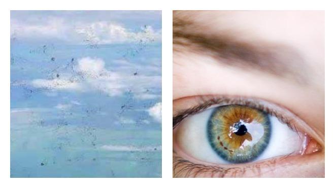 Появление черных точек в глазах: Причины и откуда они берутся?