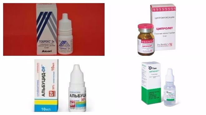 антибиотики при воспалении глаз