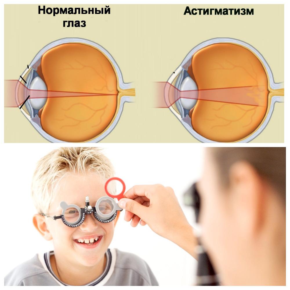 Проявление гиперметропического астигматизма у детей