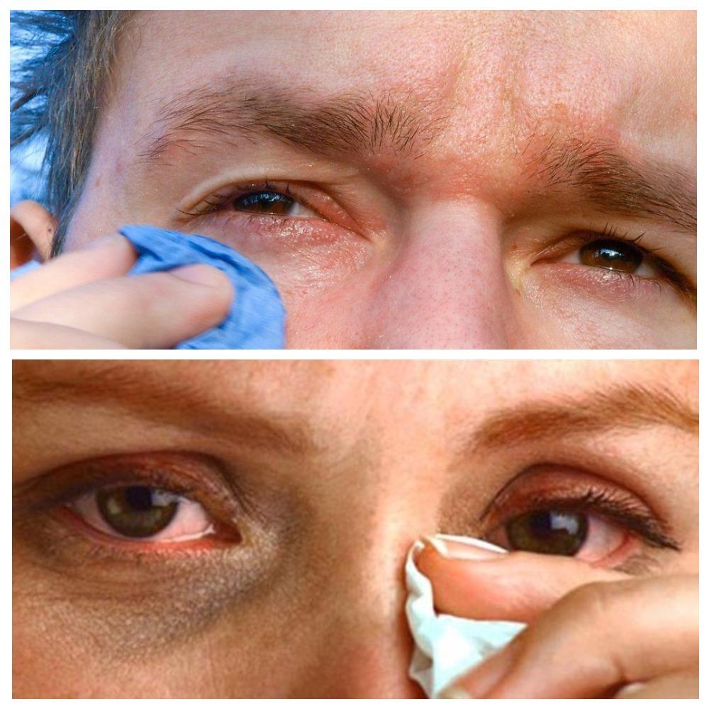 Глаз продуло: причины образования воспаления и лечение патологии