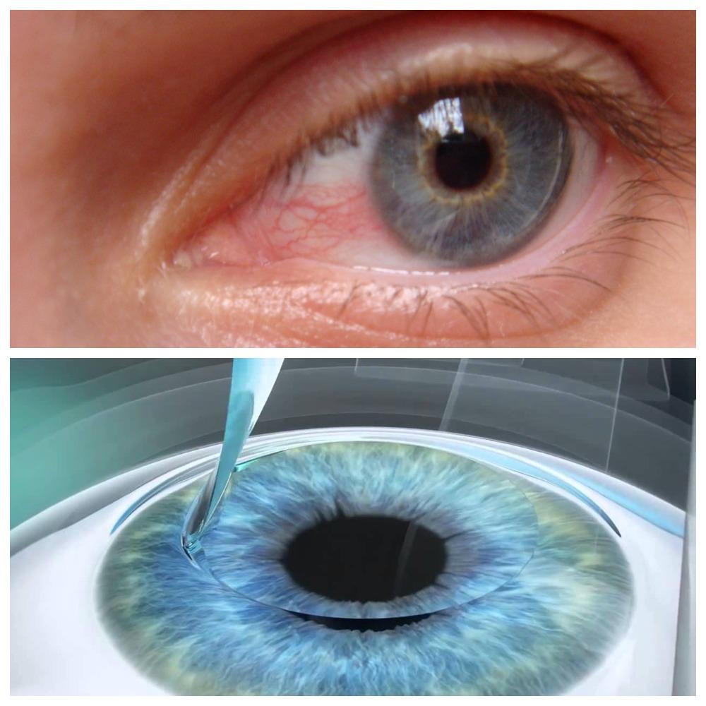 Возможные последствия лазерной коррекции зрения