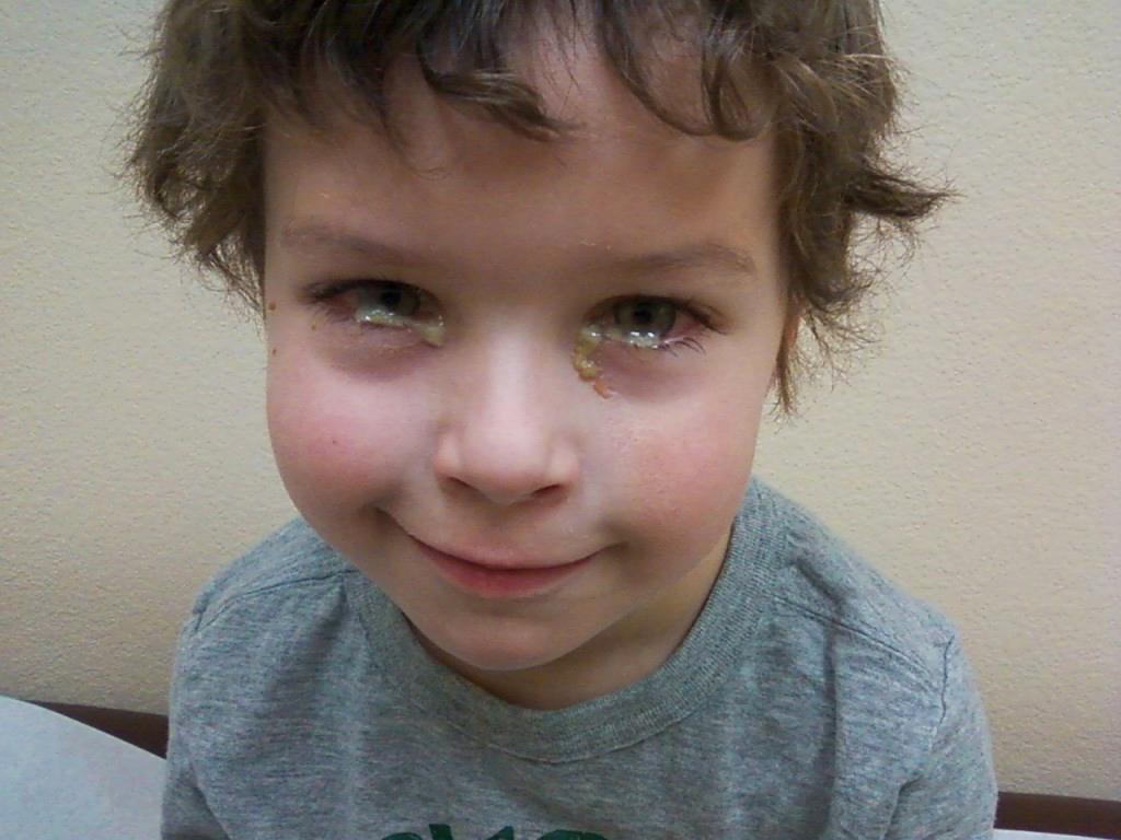 Что нужно учитывать при выборе мази от конъюнктивита для детей