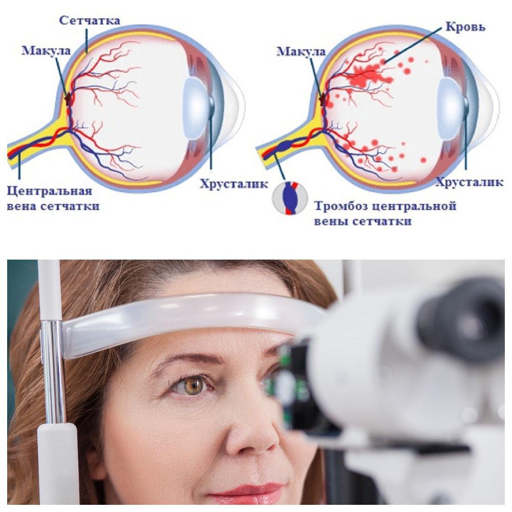Тромбоз центральной вены сетчатки глаза - как проводится лечение