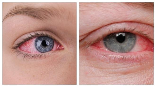 Конъюнктивит глаз у беременных 68
